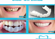 Photo de l'annonce: SNAP ON SMILE ET APPAREIL VALPLAST
