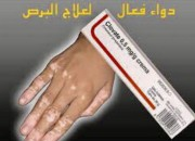 Photo de l'annonce: مزيل البرص